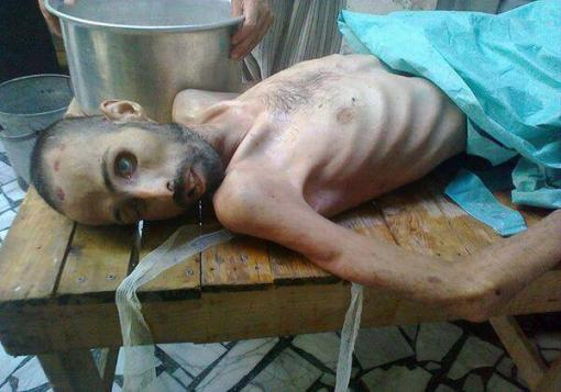 صورة صورة لمعتقل بعد اربع شهور من الاعتقال والتعذيب