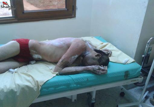 صورة ريف حلب – اورم الكبرى :  بعض المصابين بالقنابل الفوسفورية الحارقة في المدينة