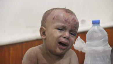 صورة بعد يوم واحد من قصفه بالكلور طائرات الأسد ترتكب مجزرة في السكري بحلب